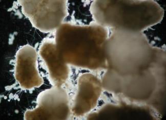 Có cần bổ sung bùn vi sinh trong quá trình vận hành
